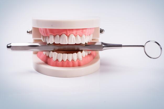 Így kalkuláljon a szép mosolyért – fogimplantátum árak